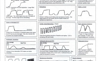 Interpreting Capnography